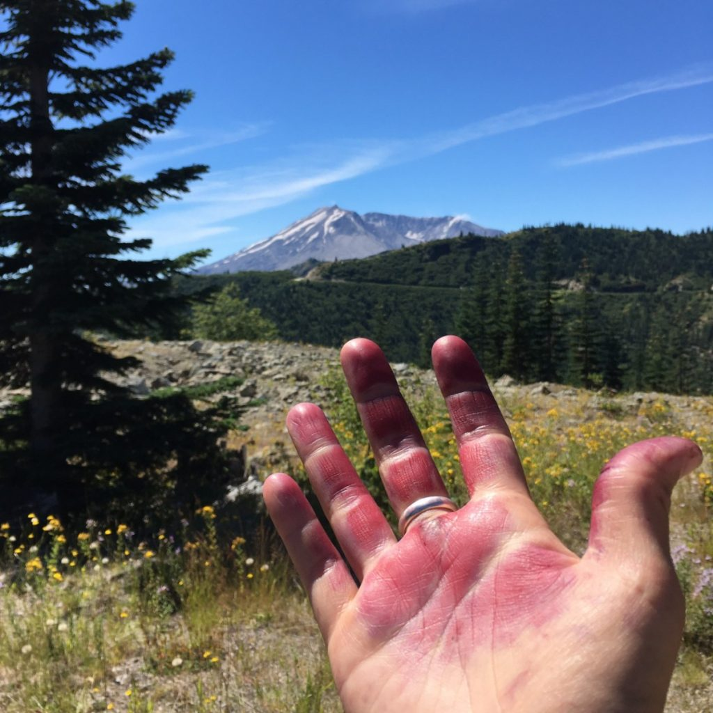 An open palmed hand is shown in the foreground, it is almost entirely covered in purple blotches. In the background there is a rocky and grassy meadow, a large pine tree, and far off the in the distance a view of Mt. St. Helens from the northern open crater side.